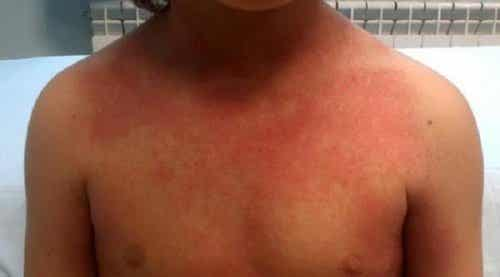Scarlet Fever in Children: What You Should Know