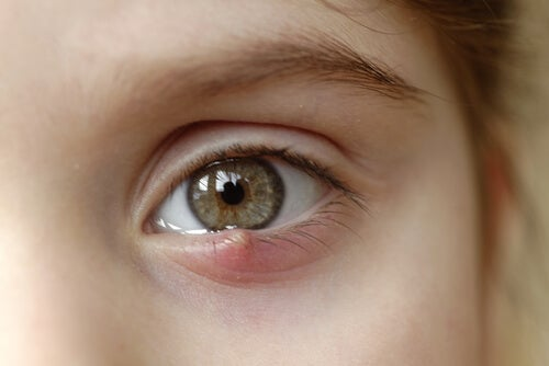 Styes in Children: How to Treat Them