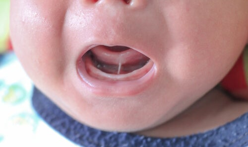 What is Ankyloglossia in Children?