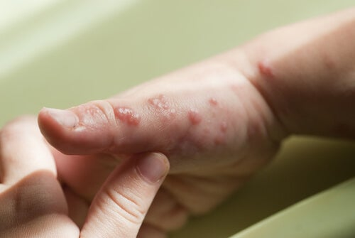Herpes in Children: Symptoms, Causes and Treatment