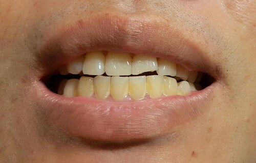 The Appearance of Stains on Permanent Teeth