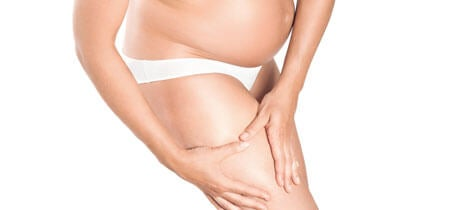 Stretch Marks: What Are They and How Can They Be Treated?
