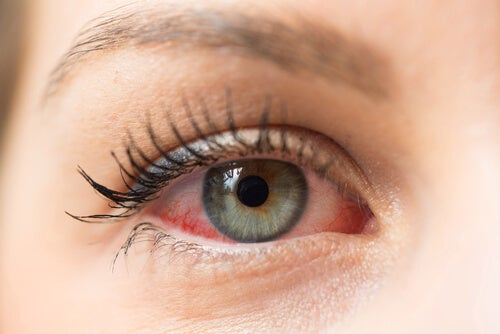 How to Prevent the Spread of Pink Eye among Children