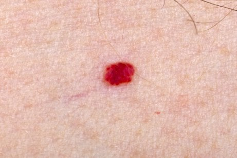 What Should I Do If My Child Has Angiomas?
