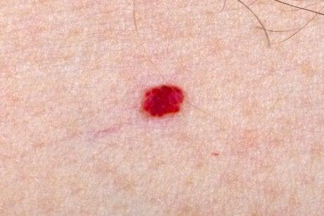 What Should I Do If My Child Has Angiomas?