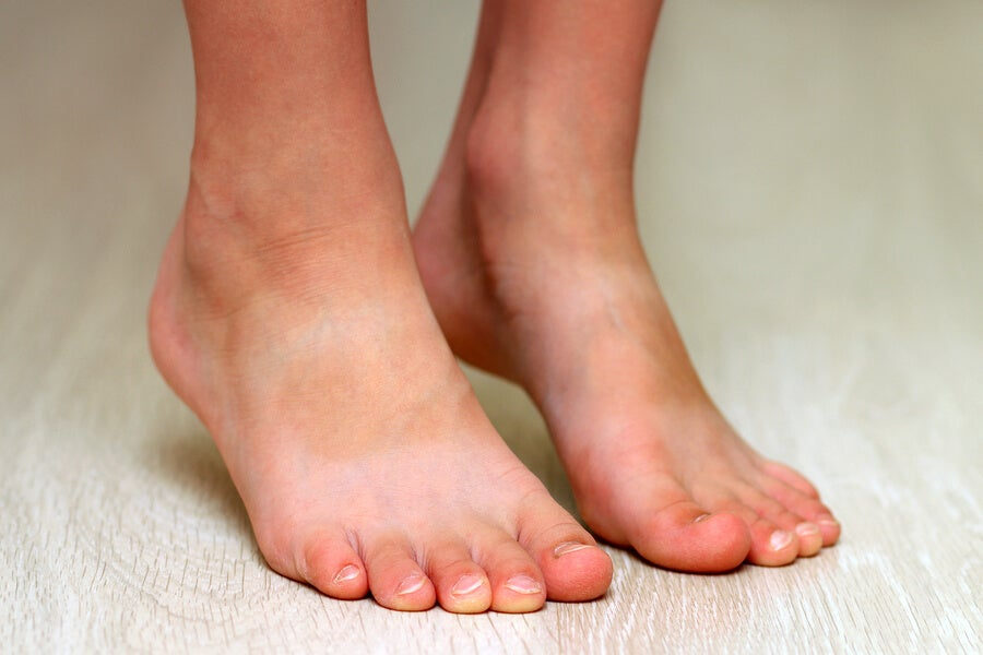 Flat Feet in Children: What Is It and How Can It Be Avoided?