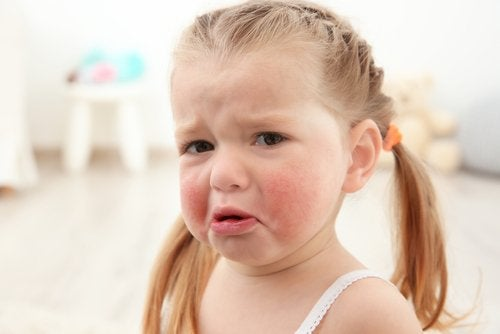 The Most Common Food Allergies in Children
