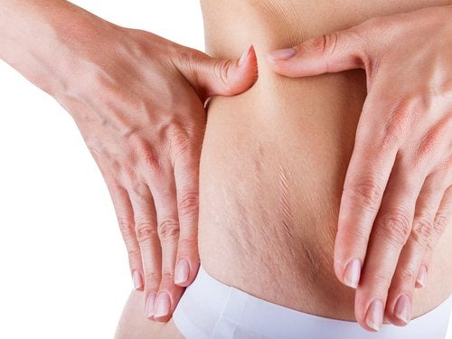 How to Eliminate Stretch Marks during Pregnancy
