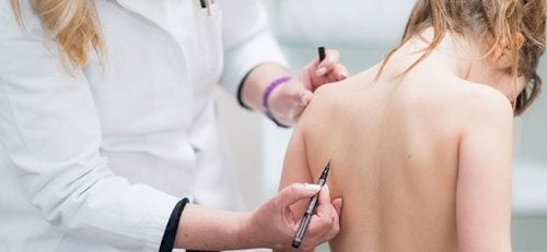 Scoliosis in Children: Everything You Need to Know