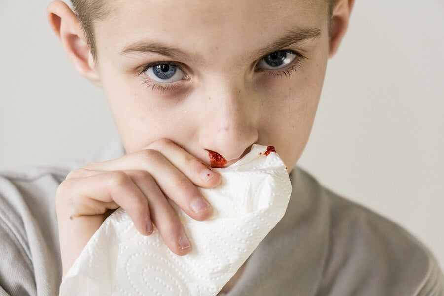 Nosebleeds in Children: Causes and Treatment