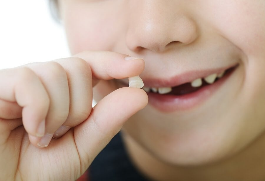 When Do Milk Teeth Fall Out, and When Do Permanent Teeth Come In?