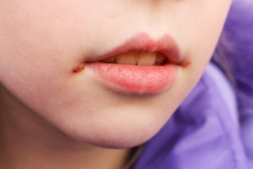 Mouth Sores in Children: Causes and Treatment