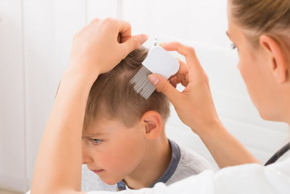 4 Remedies Against Psoriasis for Children