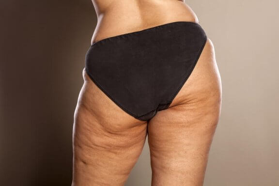 Do You Know How to Fight Cellulite?