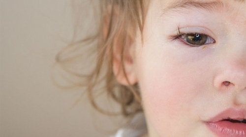 What Are the Causes of Conjunctivitis in Babies?