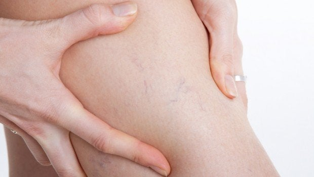How to Eliminate Varicose Veins During Pregnancy