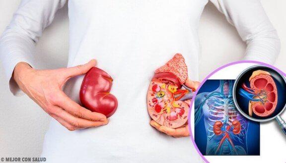 anatomisk model og grafisk billede af nyre