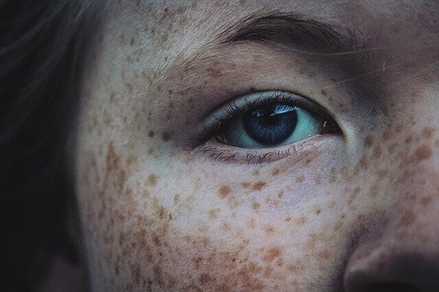 Apply sunscreen to prevent freckles from getting darker.