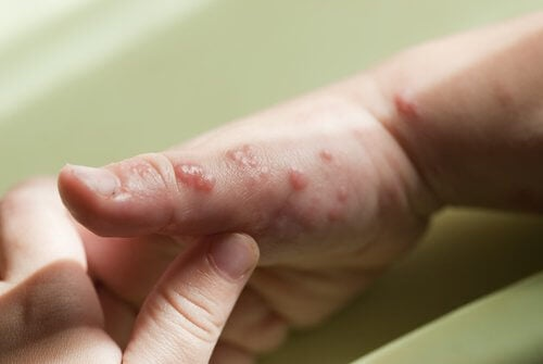 How to Cure the Blisters Caused by Herpes