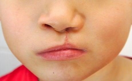 Common Craniofacial Anomalies in Babies