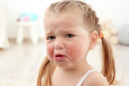 Allergies to Latex in Children: Know the Symptoms