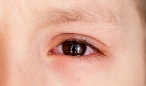 Causes of Choroidal Effusions in Children