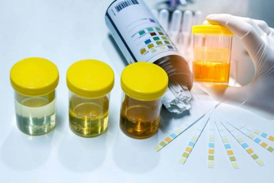 The Importance of Urine Tests During Pregnancy