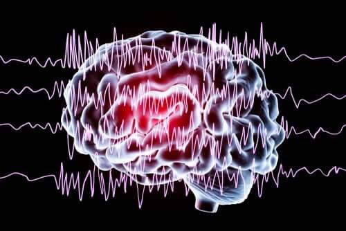 Non-Epileptic Paroxysmal Events in Children