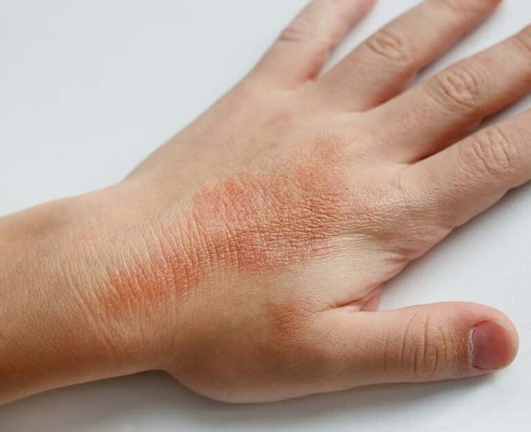 What Is Juvenile Dermatomyositis?