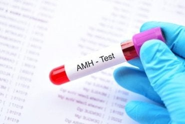 What Is the Anti-Müllerian Hormone?