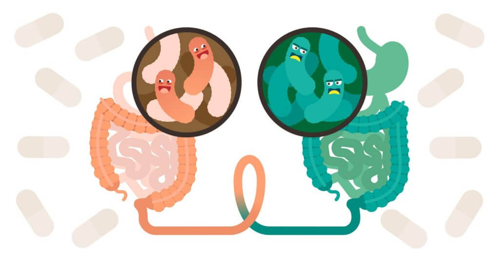 What's a Fecal Transplant and When Is it Recommended?