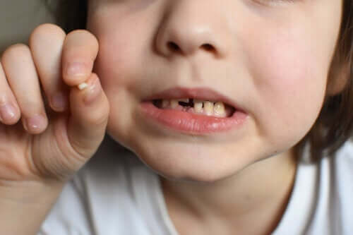 Bumps to Baby Teeth: What to Do