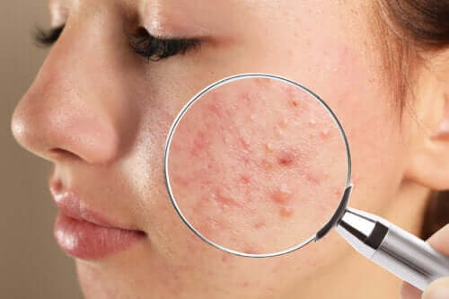 Teenage Acne: Types and Causes