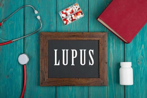 Systemic Lupus Erythematosus in Children