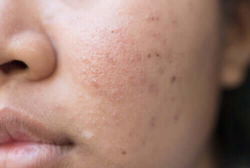 Food and Acne: What You Eat Matters