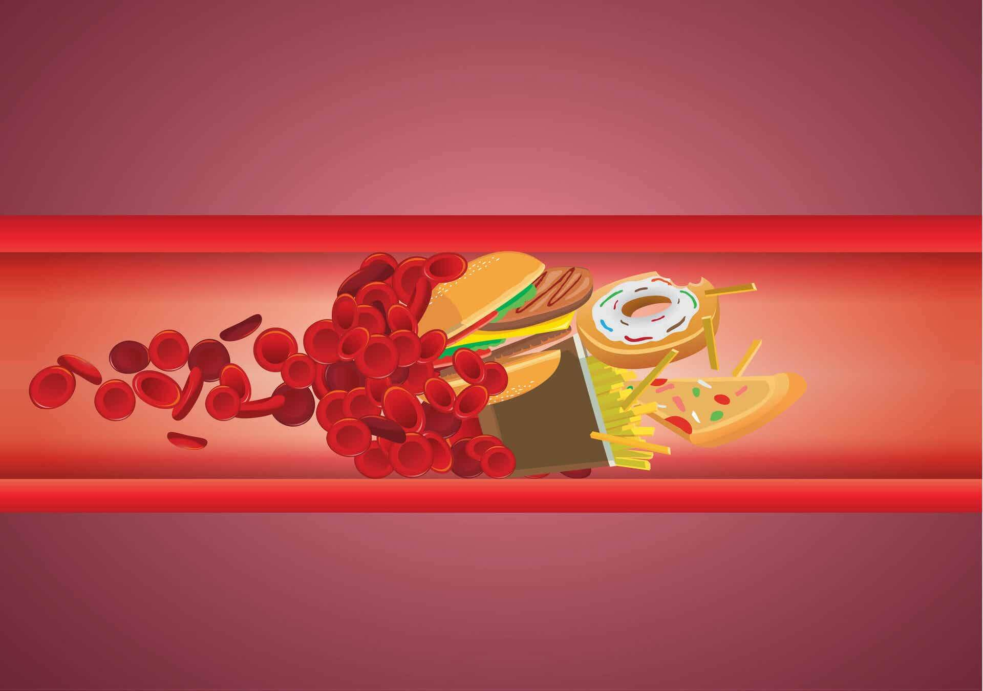 Junk food can cause high cholesterol.