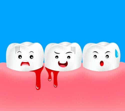 Gingivitis in Children: Symptoms and Treatment