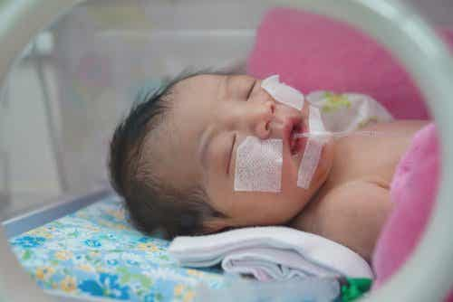 A premature baby with a feeding tube.