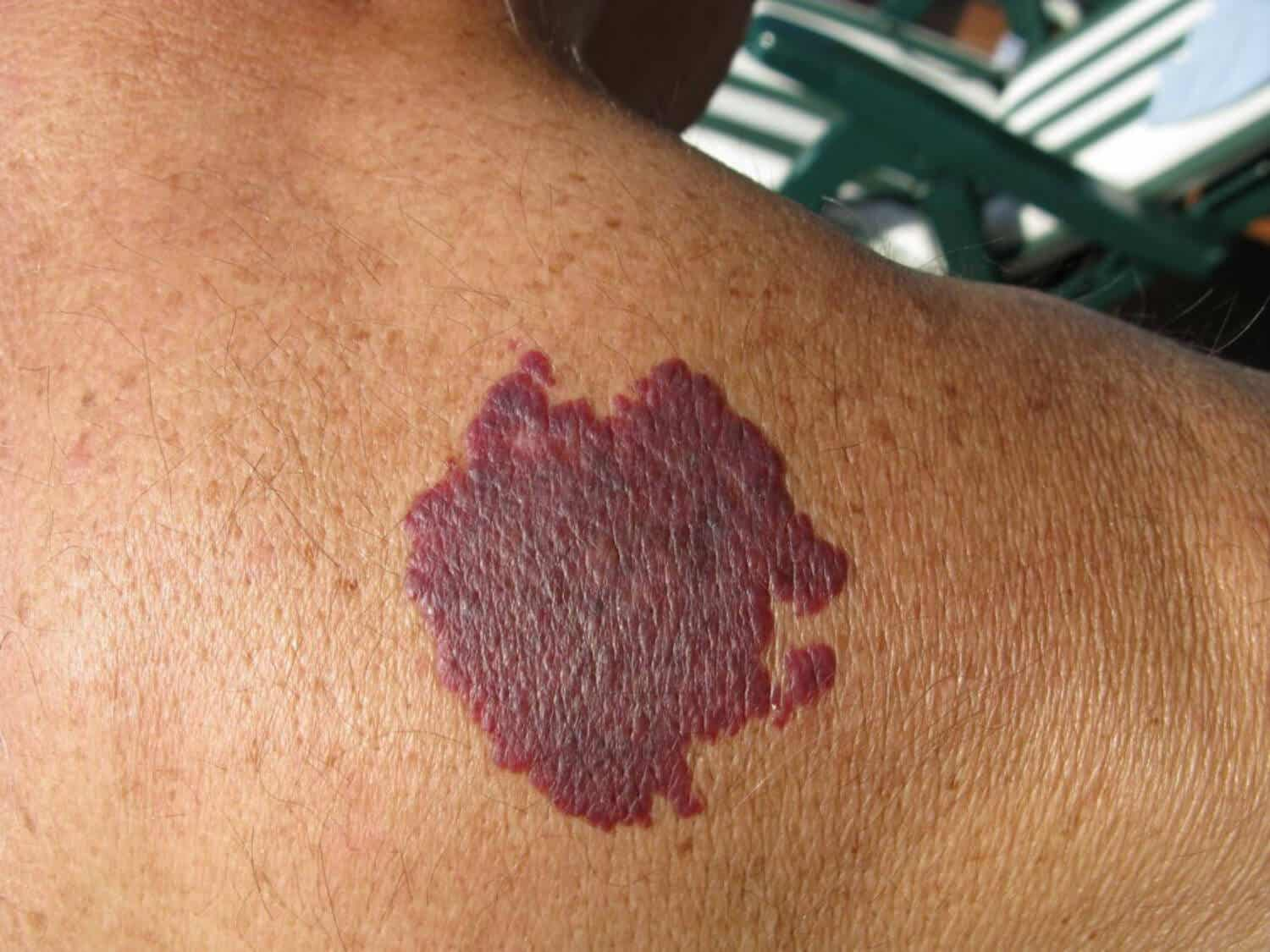 A large purple spot on a person's back.