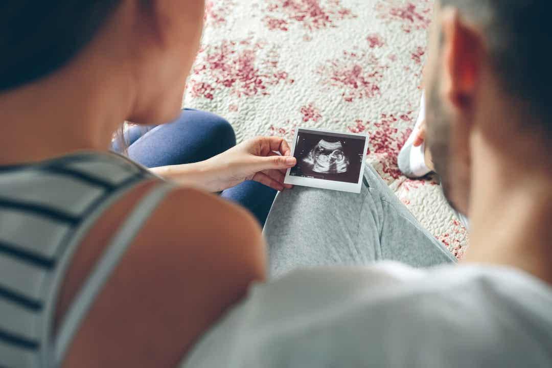 Ouders kijken naar een echografie.