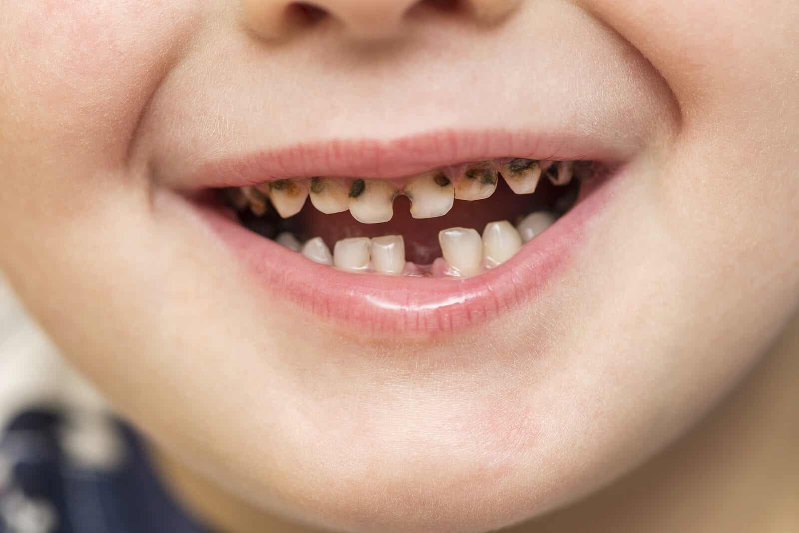 Boy with cavities.