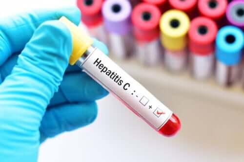 Hepatitis C During Pregnancy
