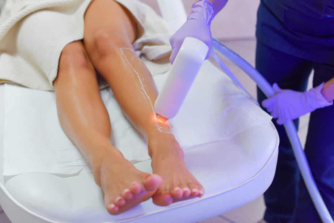 Een vrouw die laserontharing op haar benen ondergaat.