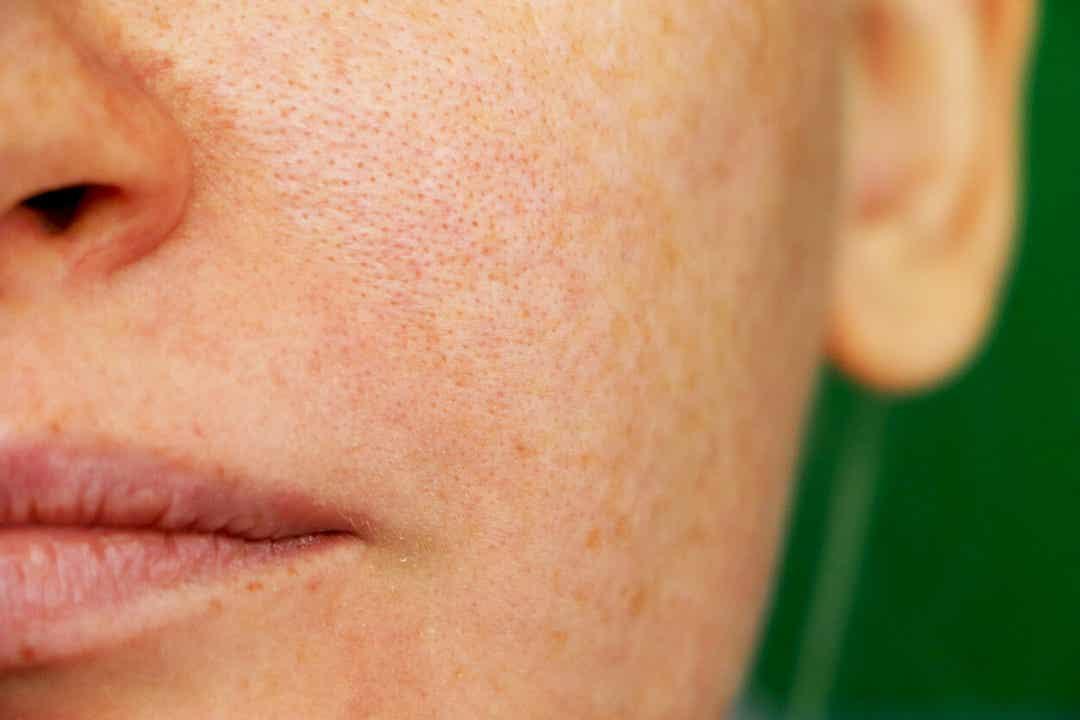 Een vrouw met melasma op haar gezicht.