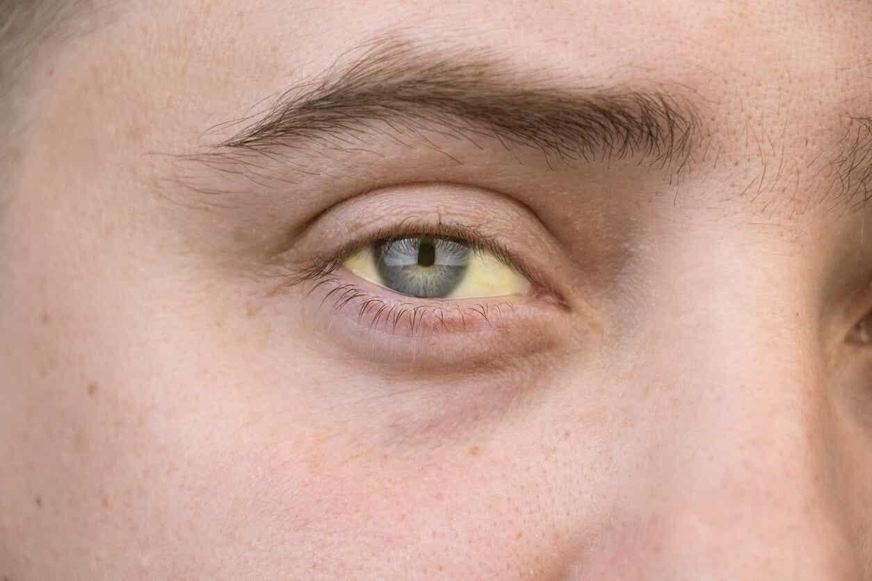 Gule øyne på grunn av hepatitt.