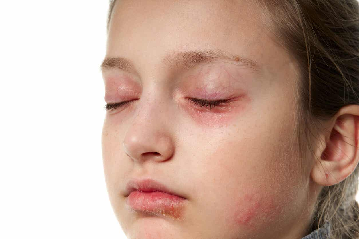 A chid with red around her eyes, chapped lips, and skin irritation.