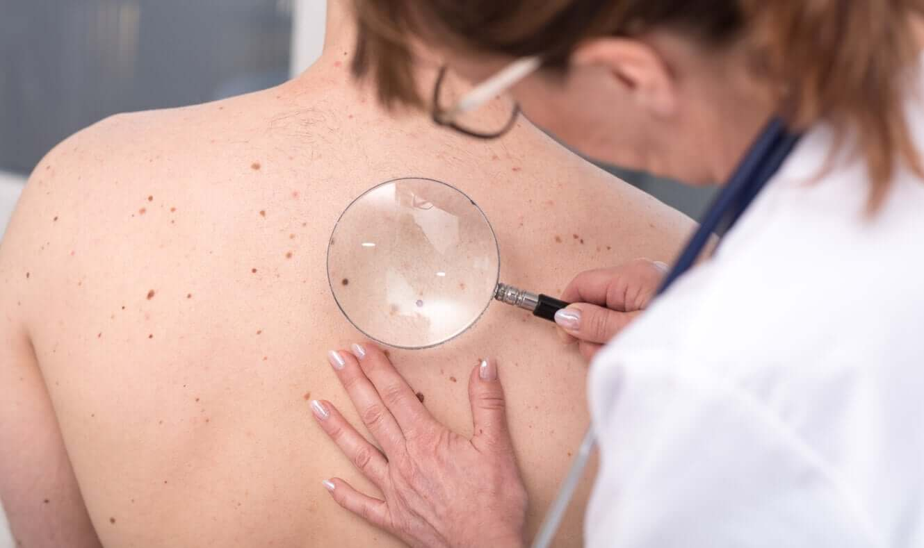 A dermatologist looking a moles on a young man's back.