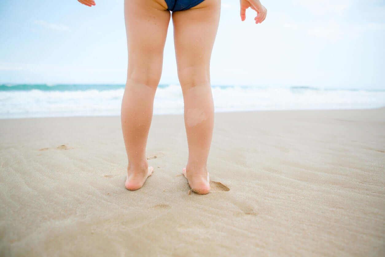A child with vitiligo on her leg standing on the beach.