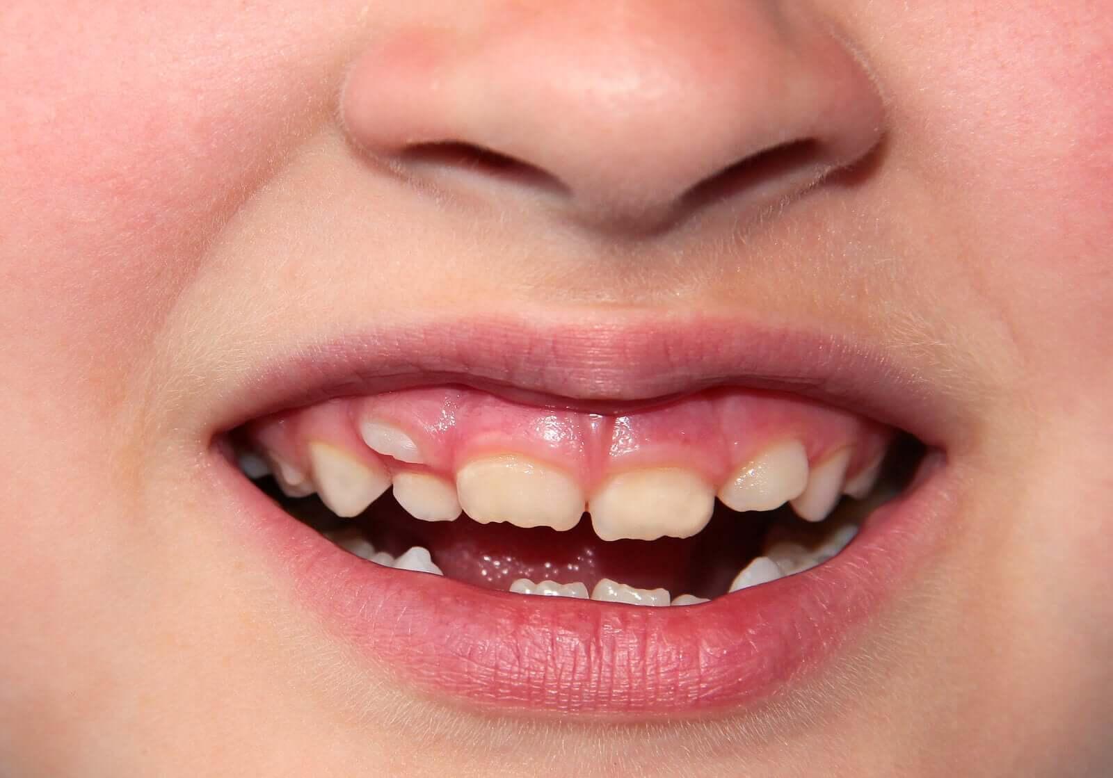 Een dubbele rij tanden bij kinderen