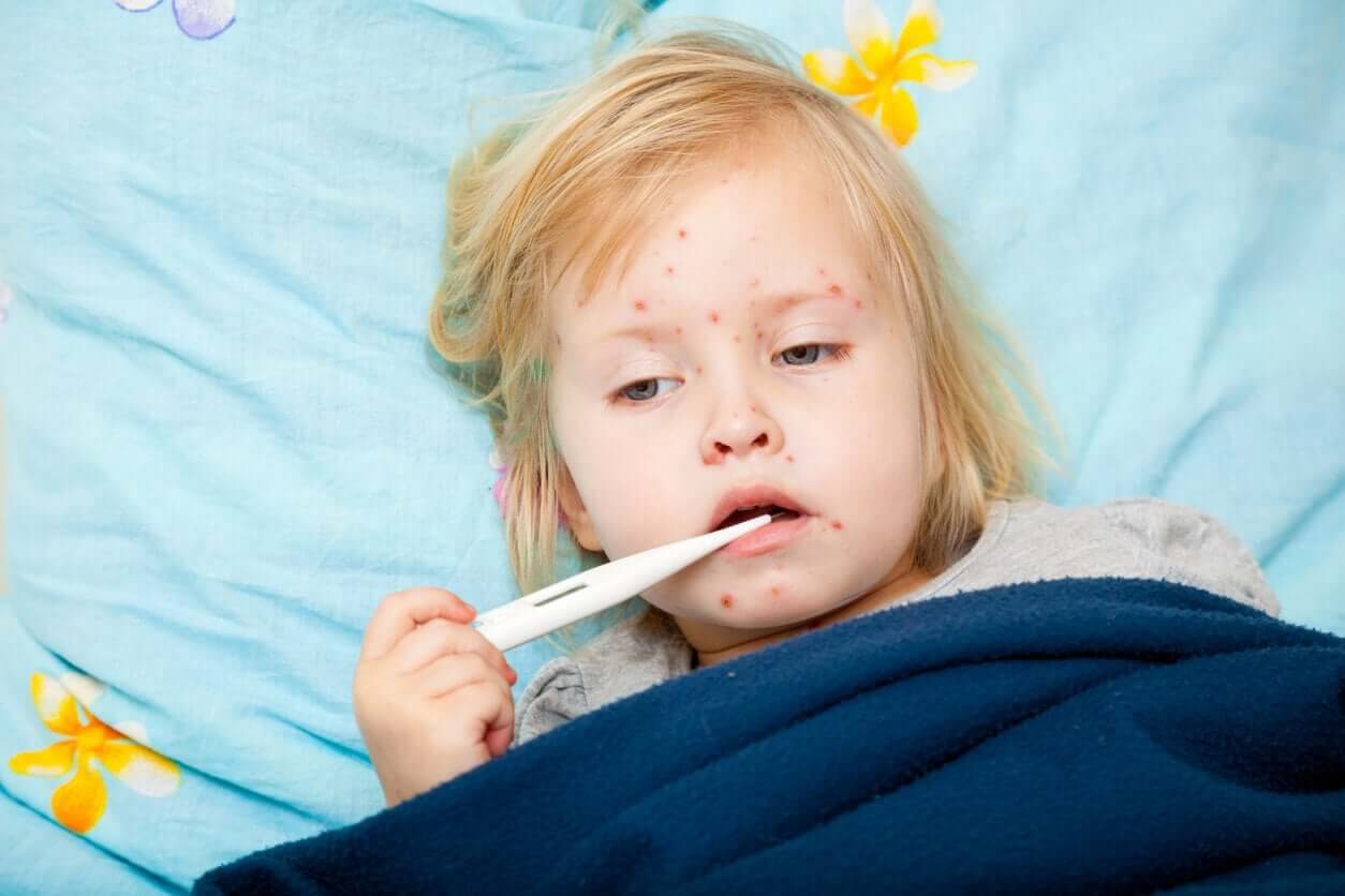 A toddler with measles with a thermometer in her mouth.